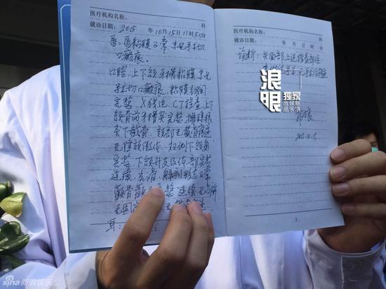 杨颖面部鉴定病历曝光 诊断结果:均无术后痕迹