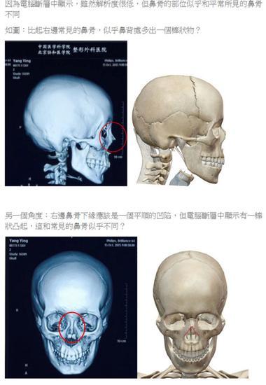 台整型医师质疑杨颖面部鉴定结果