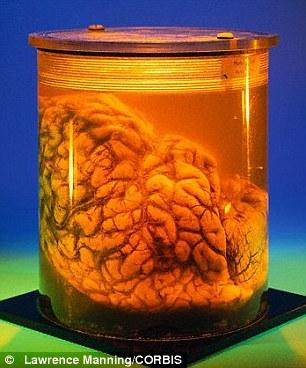 智商决定因素或为大脑结构而非脑容量