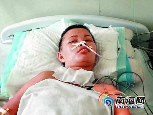 昏迷中的李海珍,有时也会睁开眼。南国都市报记者王洪旭摄