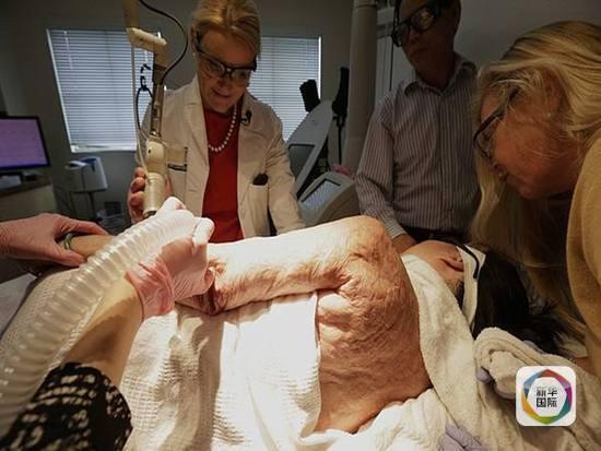 金福开始接受激光治疗。