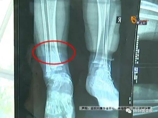 小孩左脚骨折包扎右脚 涉事医生:孩子太小没拍片