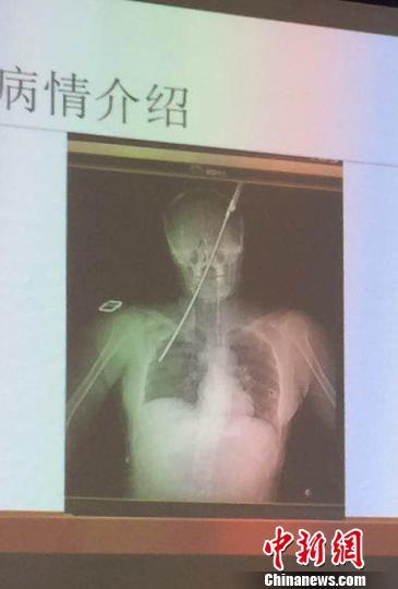 烟台一女子被伞骨从左眼斜插入肺。 刘肖宏 摄