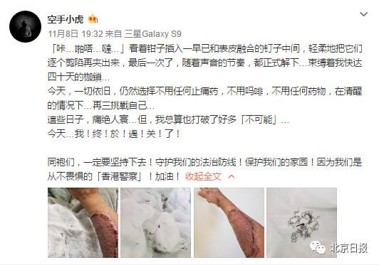 乐彩指定登入·聊城市退役军人医院成功抢救宫外孕危重患者