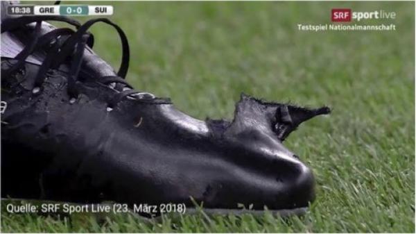 扎卡的球鞋被踩破了