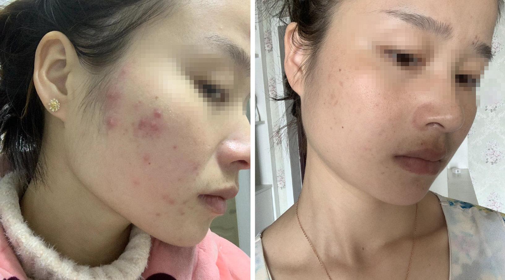 看完这个,觉得我脸上的痘痘还能再抢救一下[二哈]
