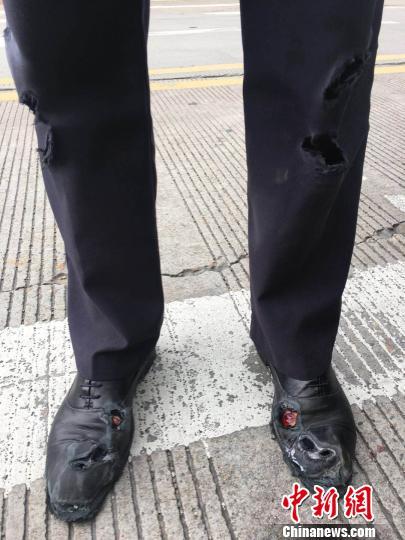 被拖行后的雷晨磊裤子、鞋子等部位全被磨破