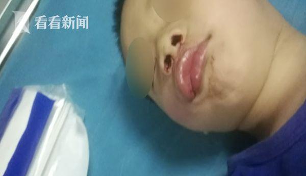 四岁男童撞到点餐男子被踹飞 颅内出血当场昏迷图片 18380 600x345