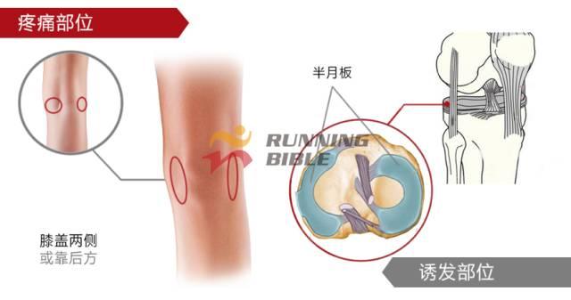 诱发原因:跑步时腿部受力不平衡,导致膝关节内翻或外翻,一侧副韧带撕