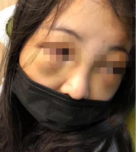 17岁女生因打呼噜,被8个同学群殴致失聪!