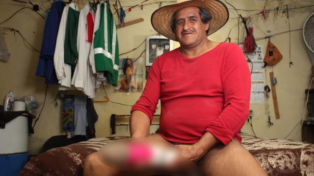墨西哥男子生殖器过长无法工作