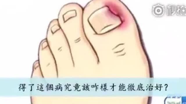 甲沟炎有多痛苦,只有经历过的人才知道 教你一招不去医院不拔指甲