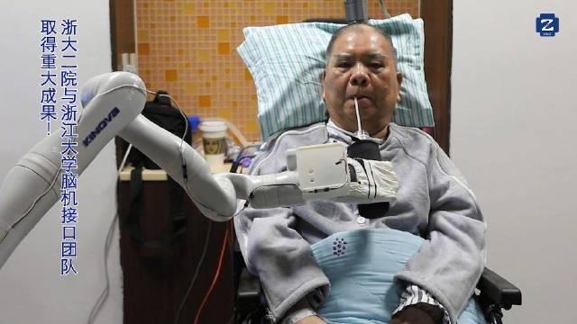 国内首例:72岁高位截瘫患者用意念喝上可乐