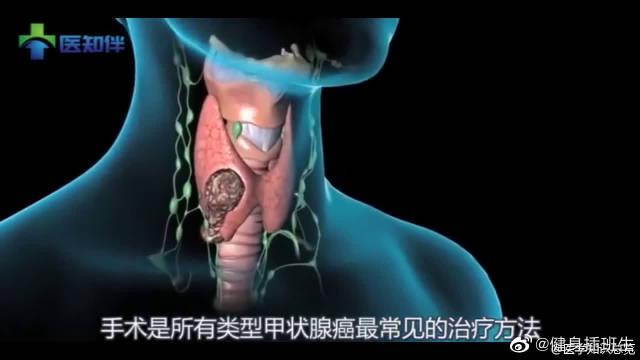 医学3D动画科普:什么是甲状腺癌?