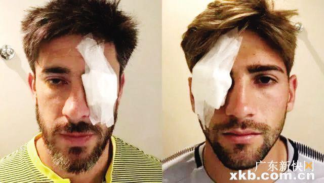 博卡两名球员眼部受伤