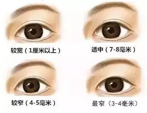 为什么你不能割太宽的双眼皮?|双眼皮|太宽|假