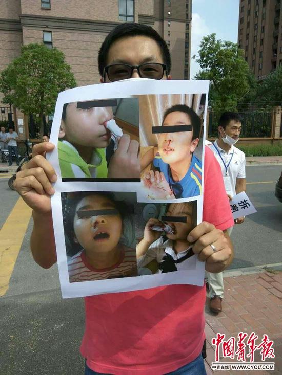 家长在泗泾三小校门外展示孩子流鼻血症状图片。