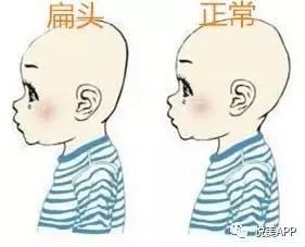 大宝贝你的脸大,很可能是因为后脑勺扁