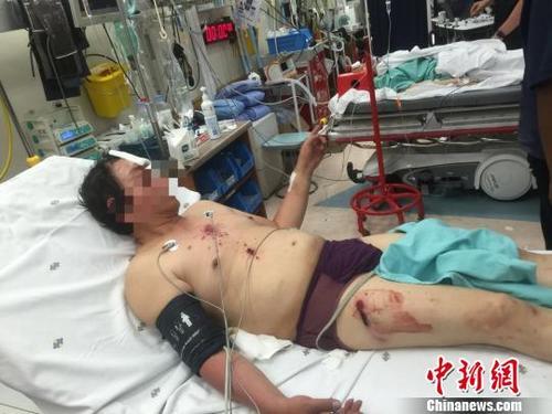 图为来自广西柳州的受伤男子。钟欣 摄