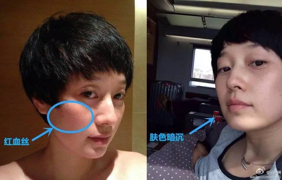 明星24k纯素颜照曝光,鹿晗老10岁,张艺兴爆痘?