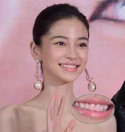 """""""教主""""黄晓明最爱的女人——AngelaBaby也没能逃过口红花妆牙齿的""""魔咒""""!"""