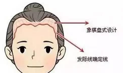 所以发际线都是小碎发的颖宝,造型总是超级软萌