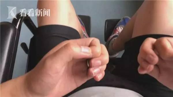 ▲上海一名19岁的吸食笑气成瘾患者,入院时情况严重。四肢已呈现肌萎缩状态:双手蜷缩,双脚无法行走,连在轮椅上坐一会儿都会觉得累,只能躺着,吃饭、喝水、上厕所,都需要别人照顾。