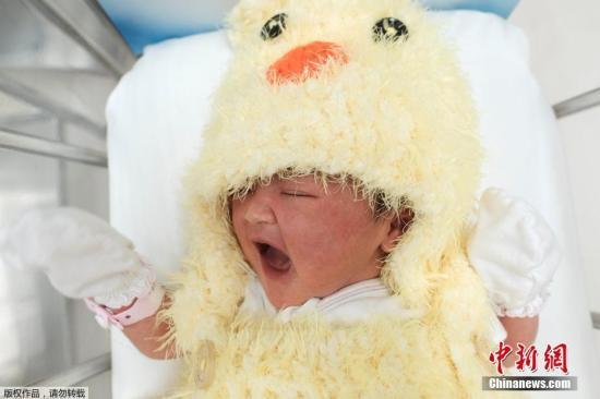 澳研究:剖腹产婴儿免疫力较弱 感染湿疹风险高