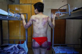 25岁小伙见网友遇仙人跳_遭拘禁勒索臀部被打紫大香蕉新闻大发快三不时彩乐点彩票