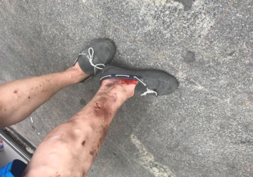 唐冶煤气爆炸事故查明,一名重伤员抢救无效不幸身亡