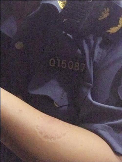 执法人员的左臂上留下深深的牙齿印。