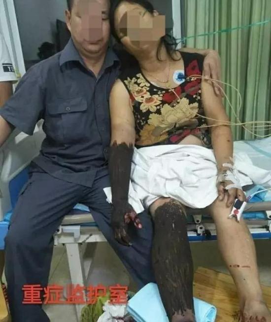 杨海美在医院接受治疗