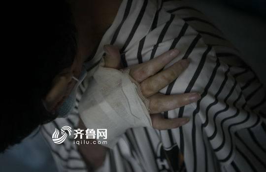 刘振的双手已经被烧得严重变形。