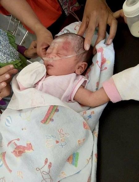 揪心!印尼一新生儿被埋化粪池后奇迹生还