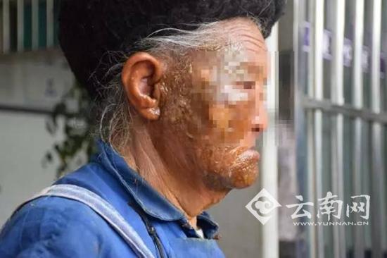 男子老母亲被开水烫伤的脸