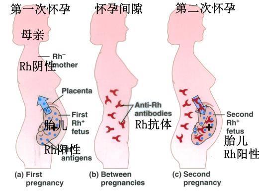 新生儿溶血性贫血(图片来源:Quora)