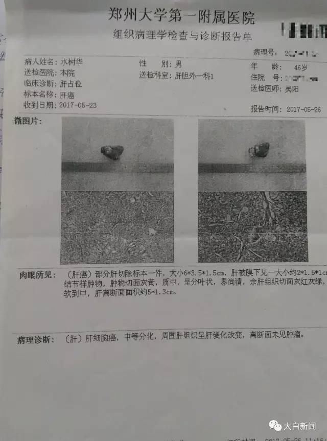 水树华的肝癌诊断书