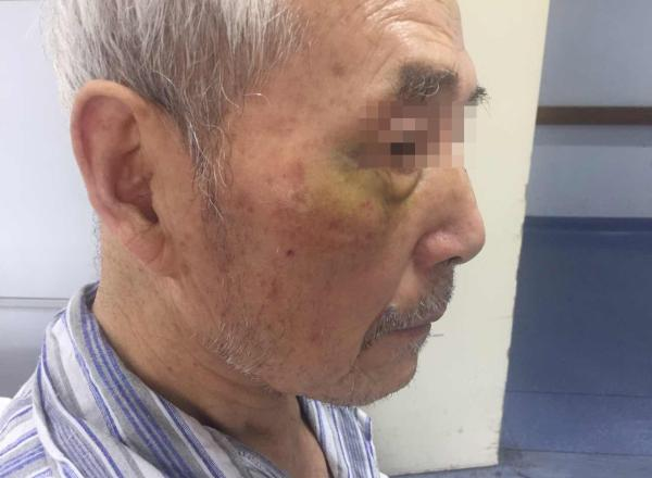 白叟左手手臂骨折,右眼角等明显淤青。 彭湃消息记者 陈斯斯 图
