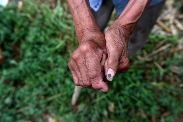 伊小秃的手指关节由于长期用镐头刨土被震得粗大变形(7月23日摄)。 新华社记者詹彦摄