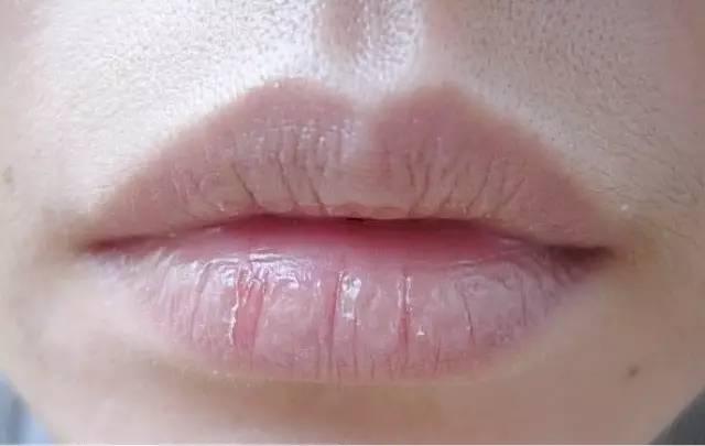 嘴唇干裂脱皮怎么办 哪个男神会愿意壁咚嘴唇起皮的你呢图片