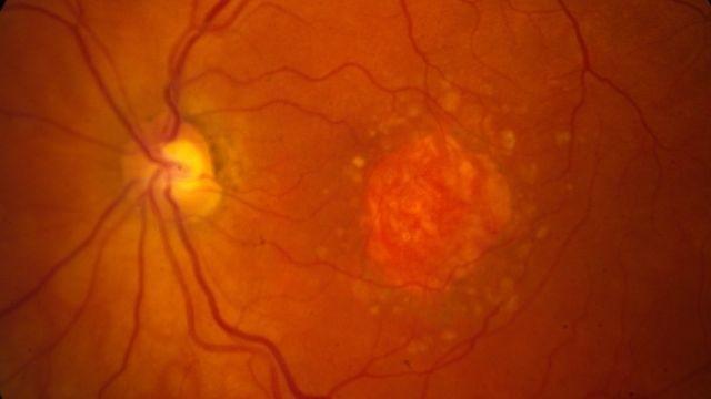 谷歌和Verily:通过AI分析视网膜图像可检测心脏病
