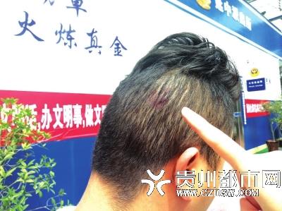 时鸣岐后脑伤痕清晰可见。