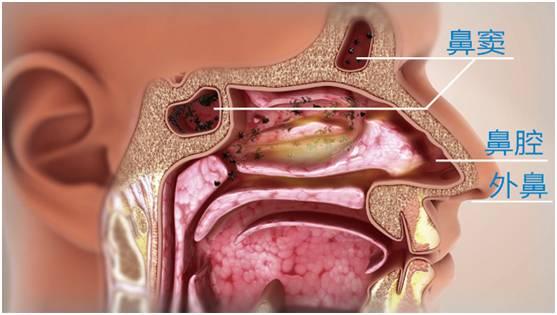 鼻腔和4对鼻窦相交通,鼻腔的炎症会蔓延至鼻窦内,而4对鼻窦结构特殊