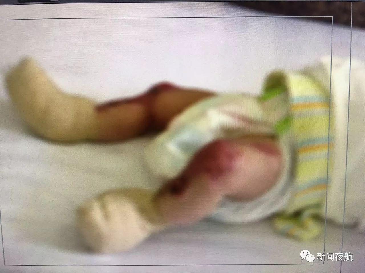 女婴罕见先天皮肤缺失 下肢双手肌肉暴露在外