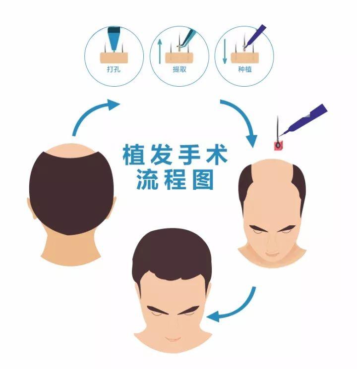 植发流程图