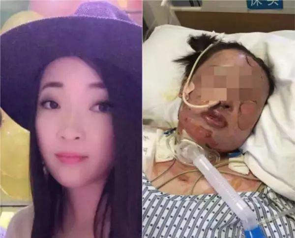 山东老乡,帮帮她吧!24岁女孩火灾中重伤病危,还不知母亲在看她的路上遭遇车祸……