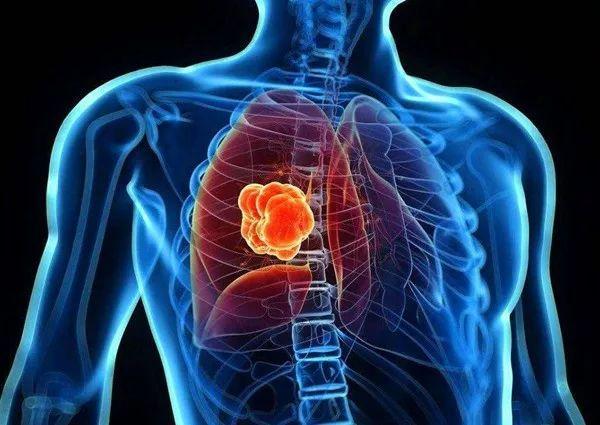 """全球死亡率最高的癌症,罪魁祸首是这四种""""气""""!"""