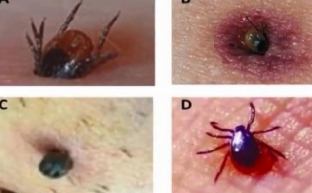 """蜱虫""""凶猛""""女子被叮咬3天后发作 医生:感染了新型病毒"""
