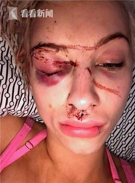 英国女模收好友劝分短信 遭男友囚禁打瞎眼睛(图)