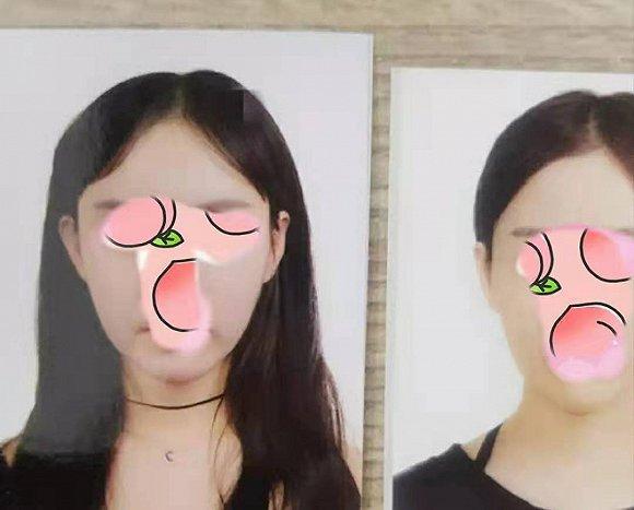 中国女孩韩国整形失败,互联网医美平台的责任